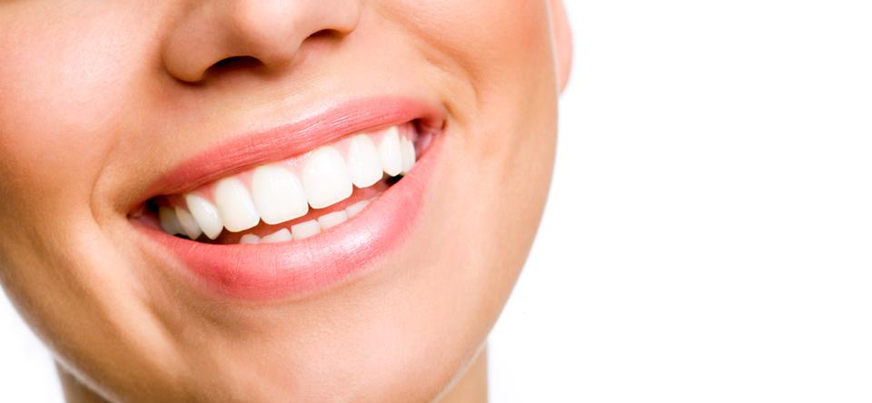dantų balinimo priemonės