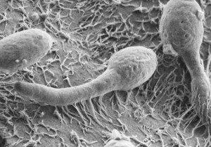 kandida grybelis 3