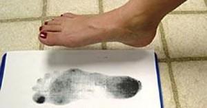 plokščiapėdystė - problema, dėl kurios reikėtų kreiptis pas ortopedą