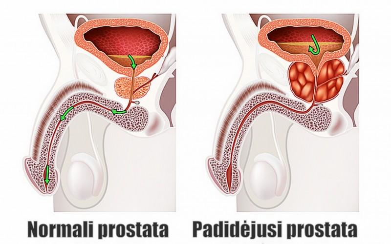 prostatos masažuoklis padeda nuo prostatos ligų