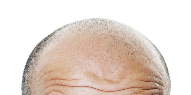 Plaukų slinkimo priežastys vyrams