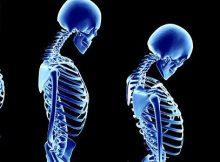 Ortopedinės prekės