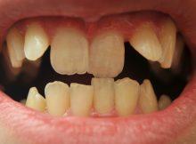 Kreivi dantys