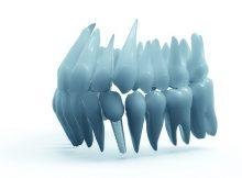Dantų implantavimo rūšys- kokios gali būti-